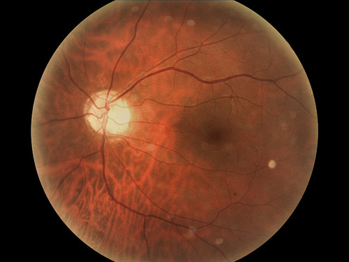 Deep Learning for Diabetic Retinopathy Diagnostics