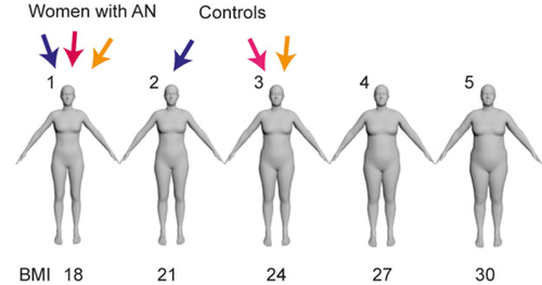 Investigating Body Image Disturbance in Anorexia Nervosa Using Novel Biometric Figure Rating Scales: A Pilot Study