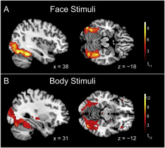 Decoding subcategories of human bodies from both body- and face-responsive cortical regions