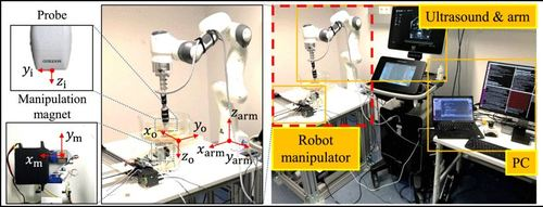 Ultrasound-guided Wireless Tubular Robotic Anchoring System