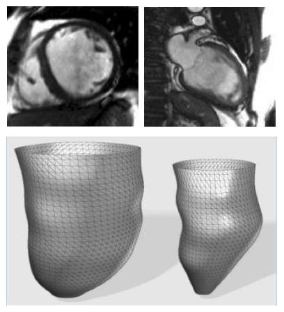 Left Ventricular Regional Wall Curvedness and Wall Stress in Patients with Ischemic Dilated Cardiomyopathy
