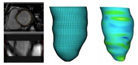 A Curvature-Based Approach for Left Ventricular Shape Analysis from Cardiac Magnetic Resonance Imaging