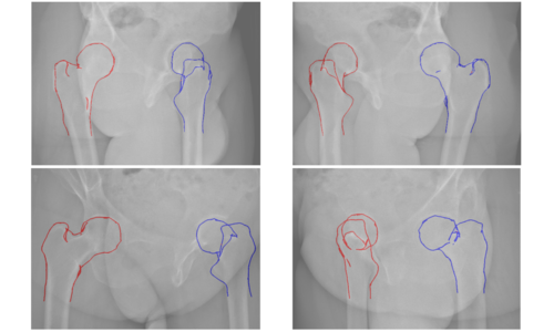Pose-invariant 3{D} Proximal Femur Estimation through Bi-Planar Image  Segmentation with Hierarchical Higher-Order Graph-based Priors