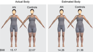 Assessing body image in anorexia nervosa using biometric self-avatars in virtual reality: Attitudinal components rather than visual body size estimation are distorted